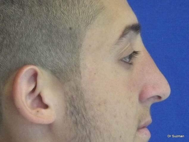 Dr. Suzman NY Rhinoplasty After