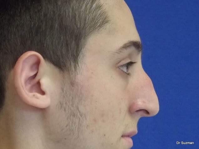 Dr. Suzman NY Rhinoplasty Before