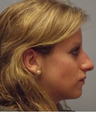 NY Rhinoplasty Patient Before