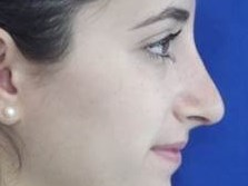 NY  Rhinoplasty Dr Suzman After