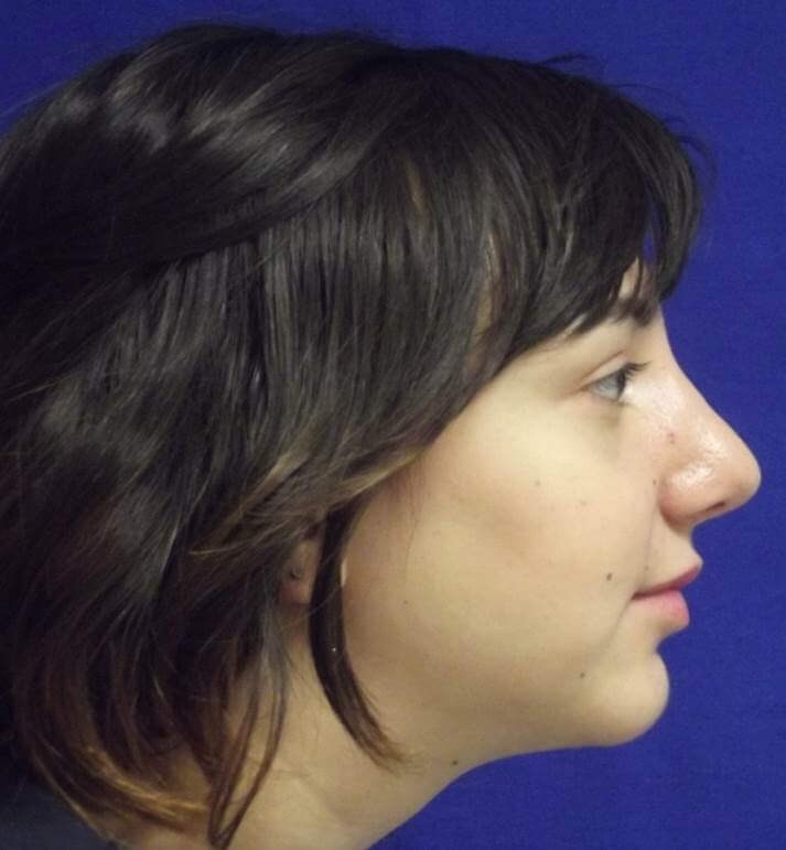 Female Nose Chin Surgery NY After