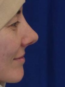 Female Rhinoplasty Patient After