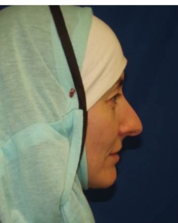 Female Rhinoplasty Patient Before