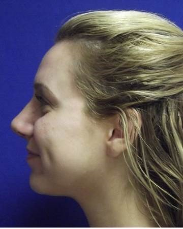 Nasal Fracture Rhinoplasty After