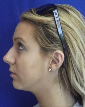 Nasal Fracture Rhinoplasty Before
