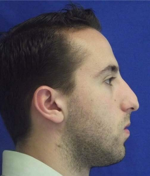 Side view male rhinoplasty Before