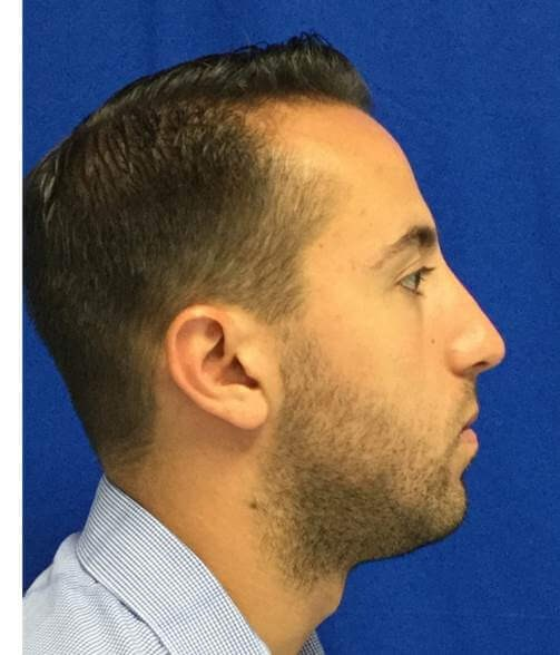Side view male rhinoplasty After