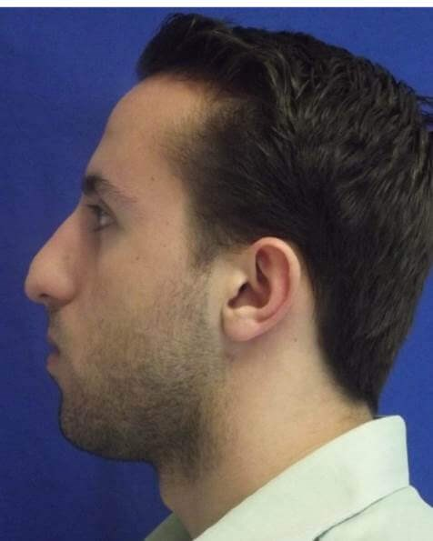 Male rhinoplasty tip deformity Before