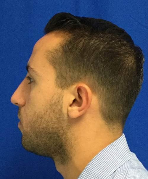Male rhinoplasty tip deformity After