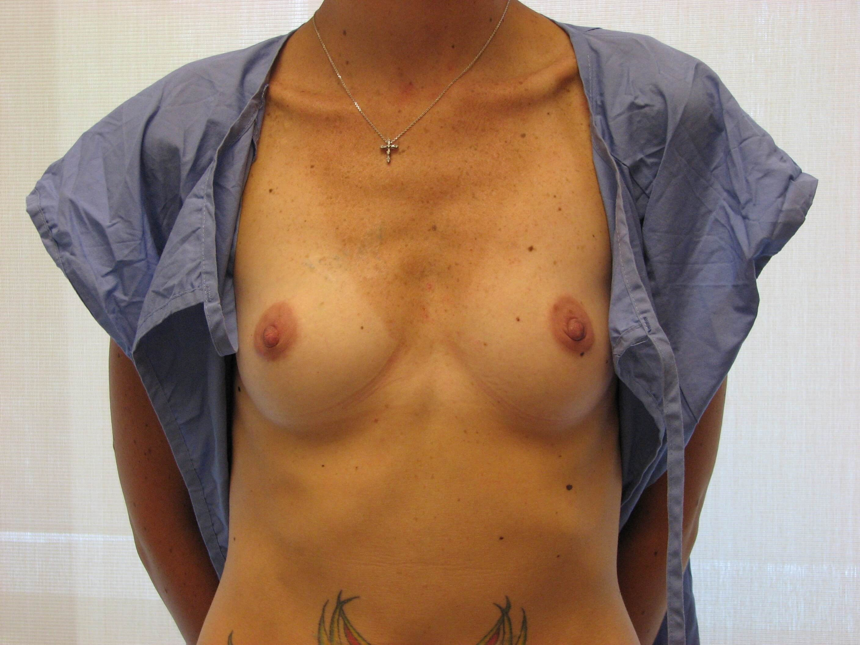 NY Breast Implant Surgery Before