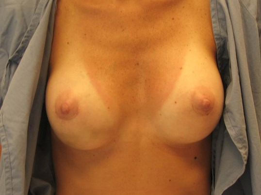 NY Breast Implant Surgery After