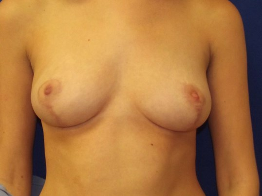 NY Breast Reduction Teenager After