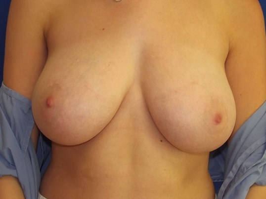 NY Breast Reduction Teenager Before