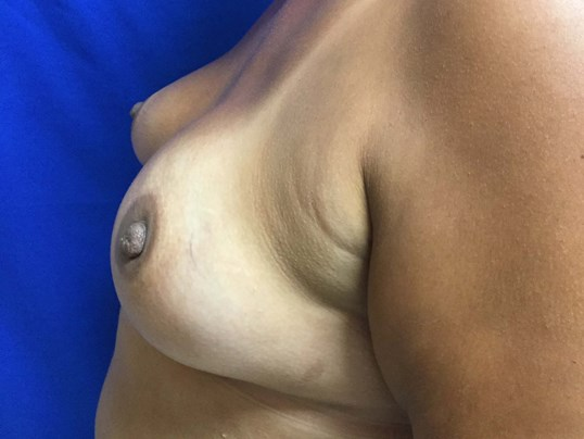Before and After Breast Recon After