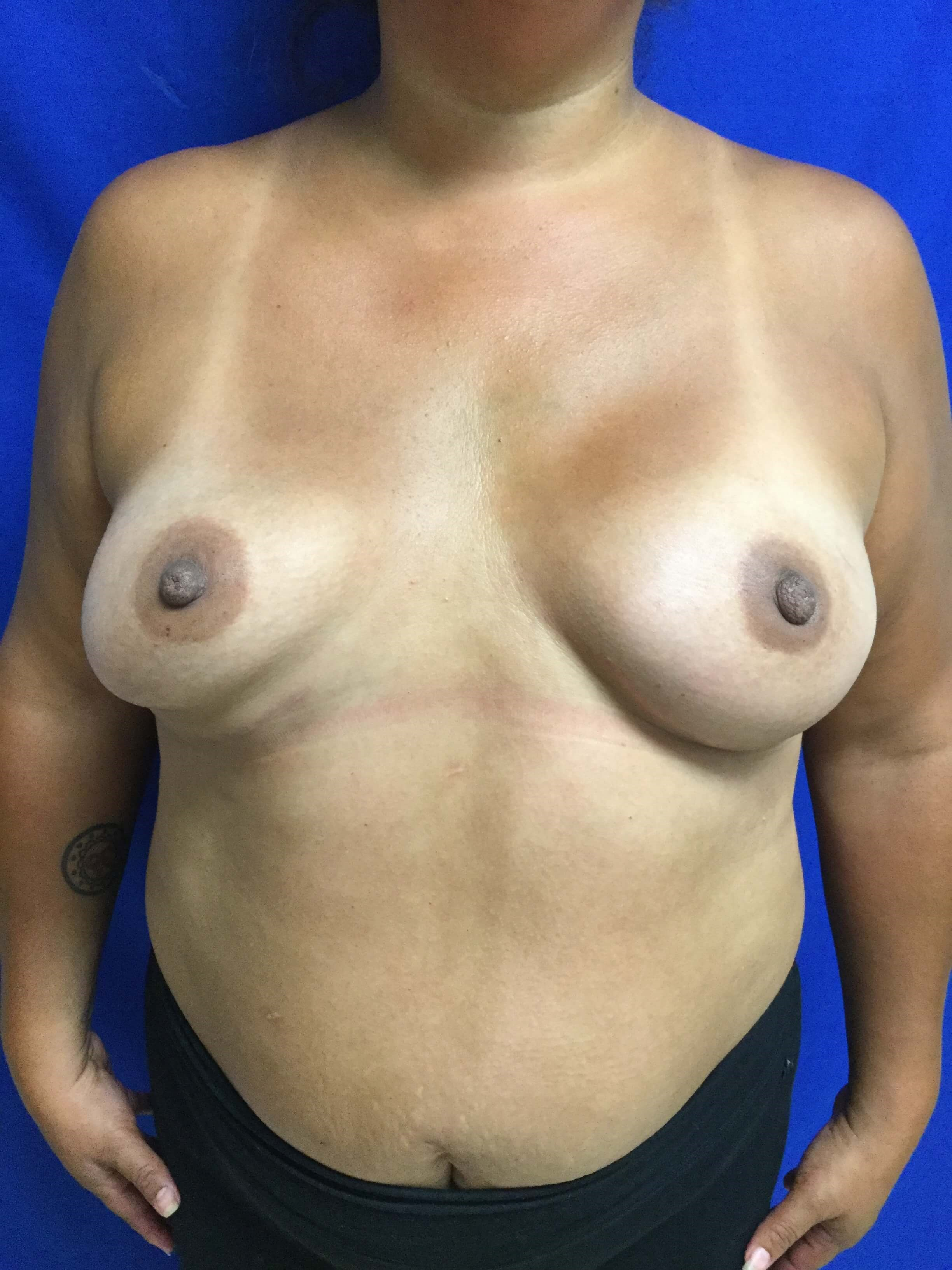 NY CT Breast Cancer Surgery After