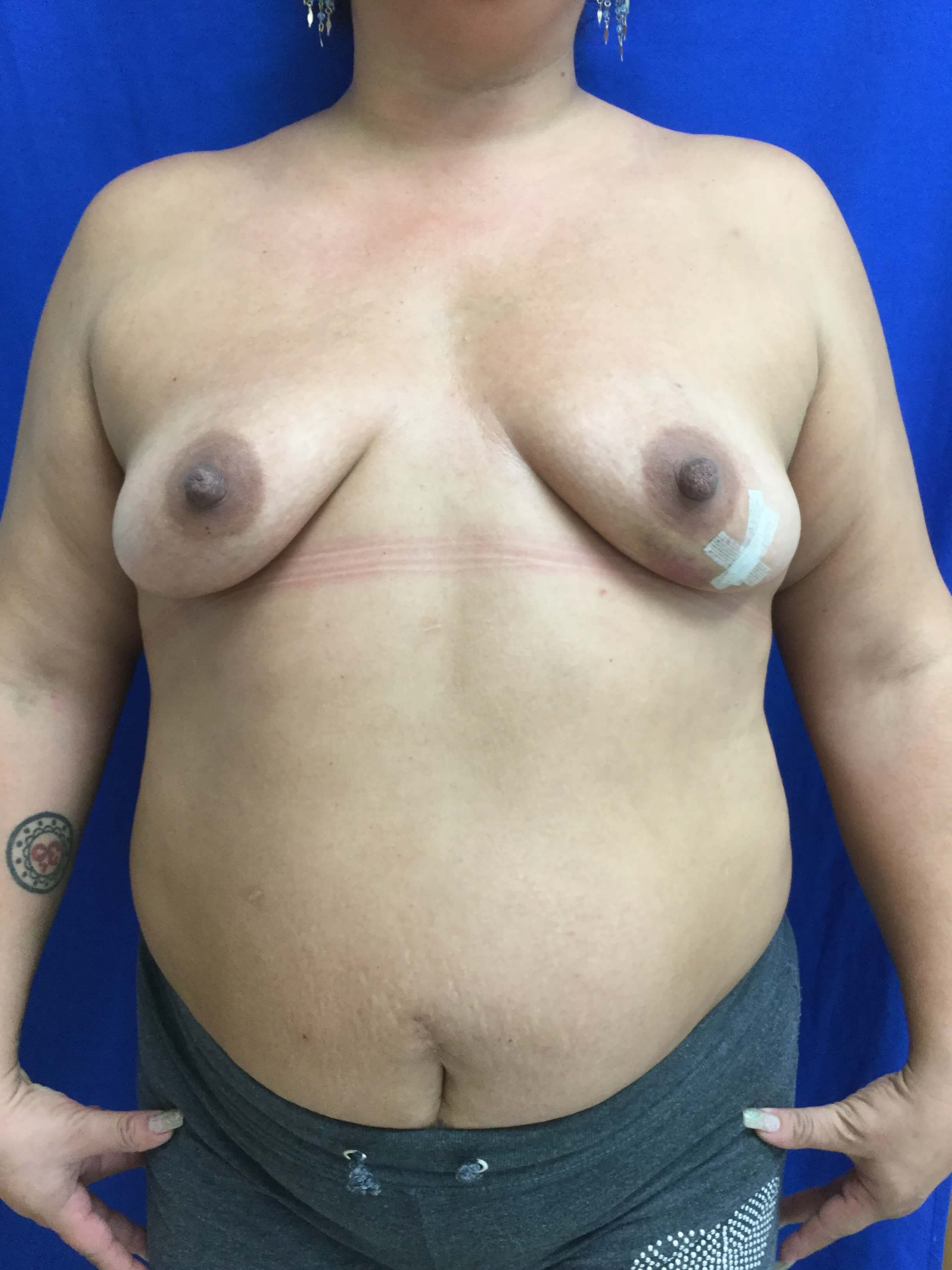 NY CT Breast Cancer Surgery Before