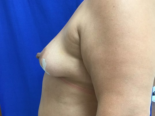 Before and After Breast Recon Before