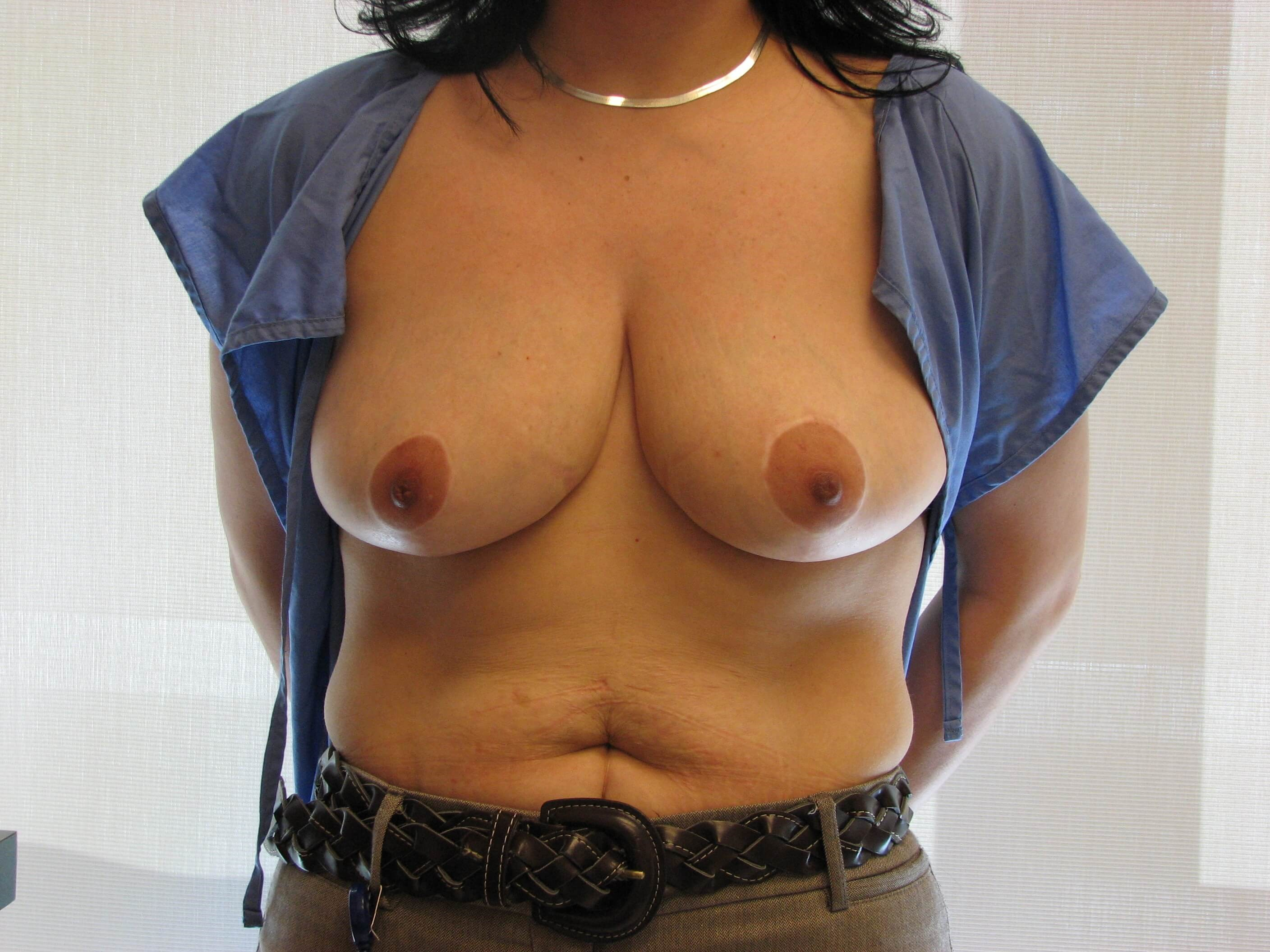 Dr. Suzman NY Breast Reduction After
