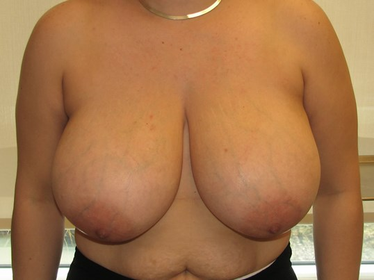 Dr. Suzman NY Breast Reduction Before
