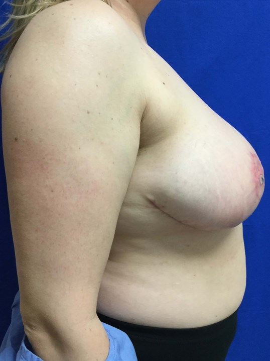 Very Large Breast Reduction After