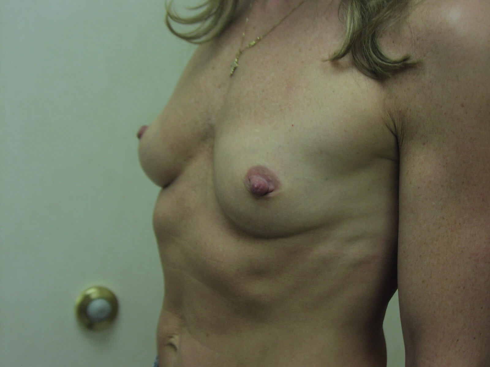 CT Breast Implants:Dr Suzman Before