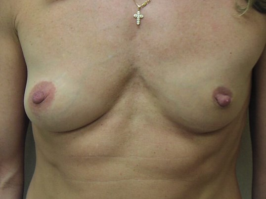 Front View Breast Implants CT Before
