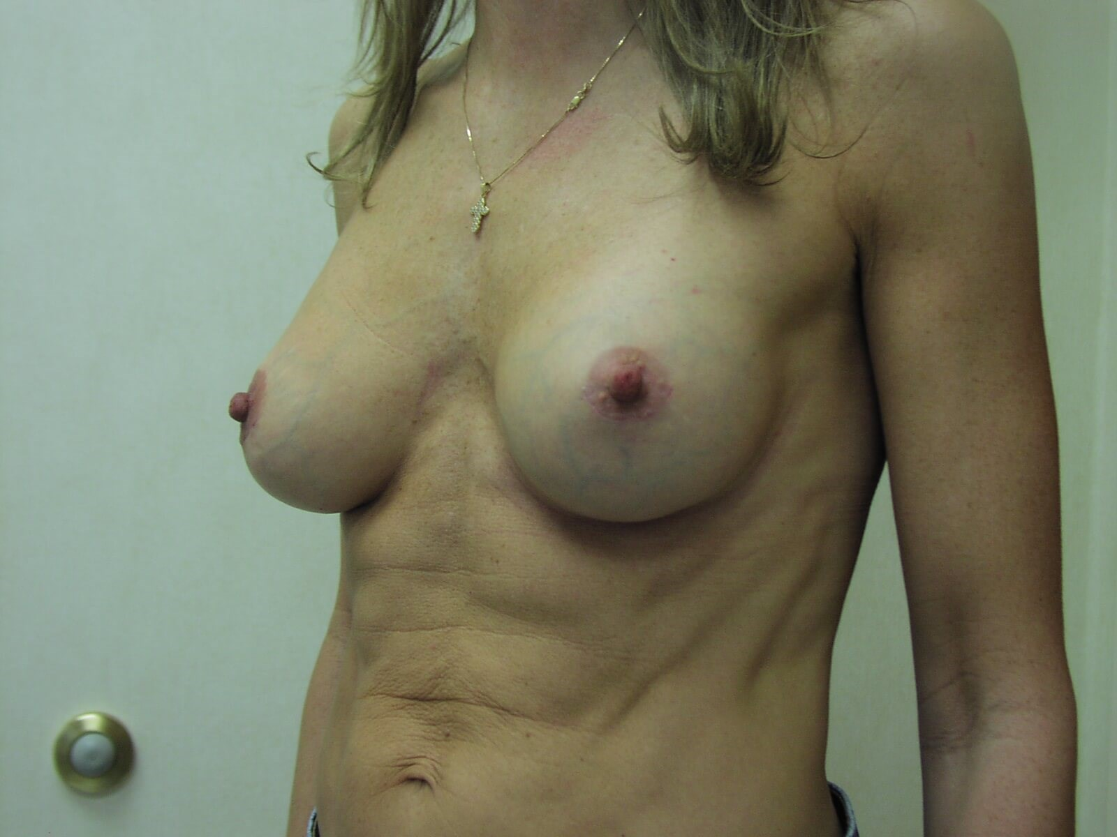 CT Breast Implants:Dr Suzman After