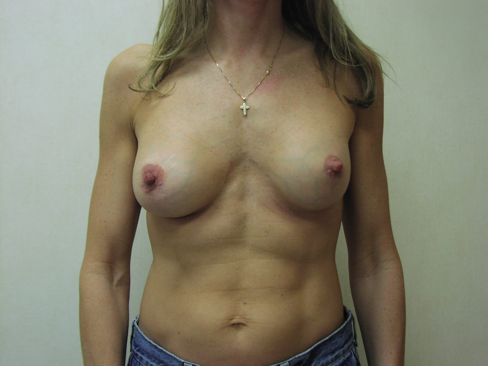 Front View Breast Implants CT After