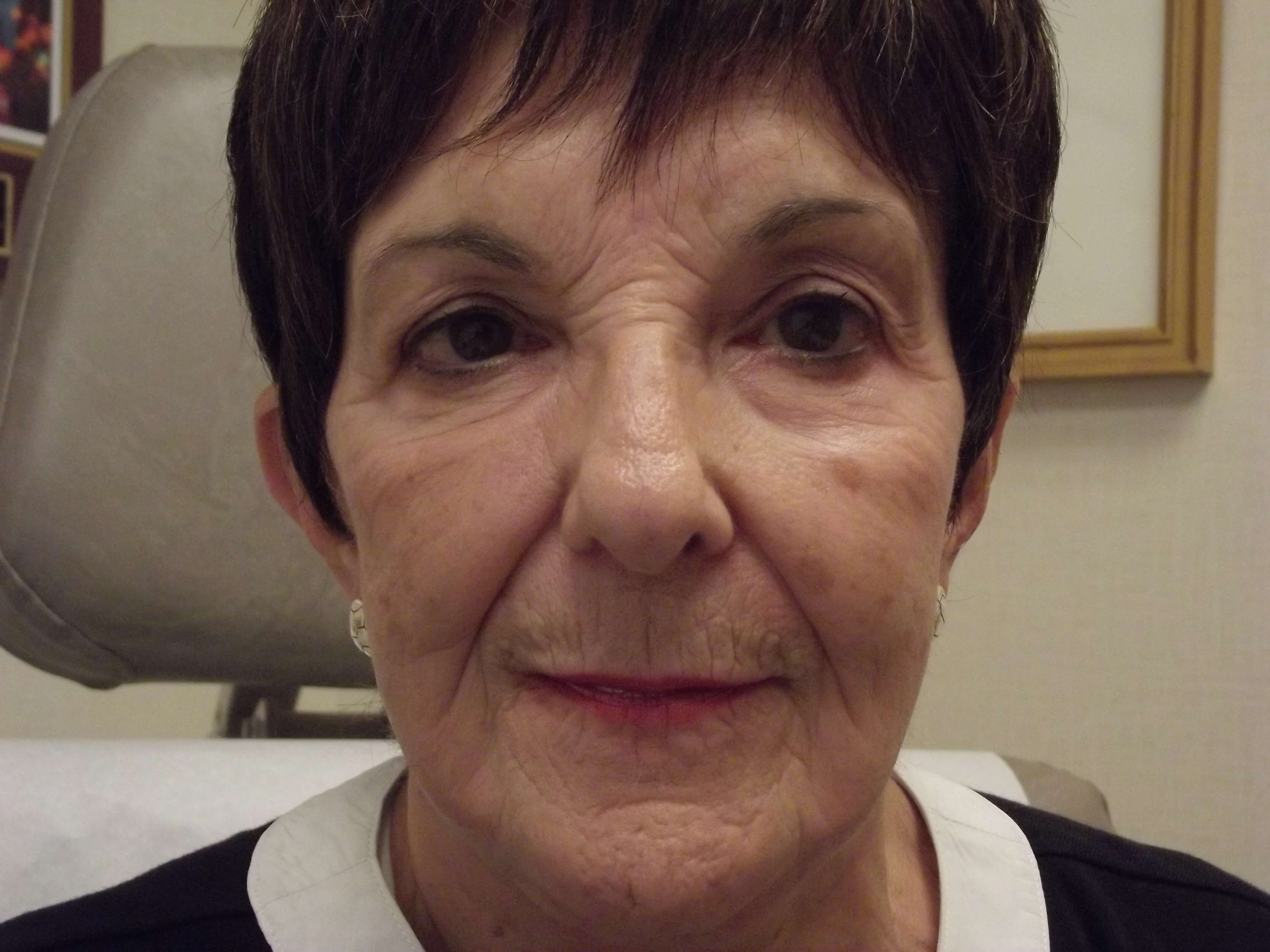 NY Facelift Expert Dr Suzman Before