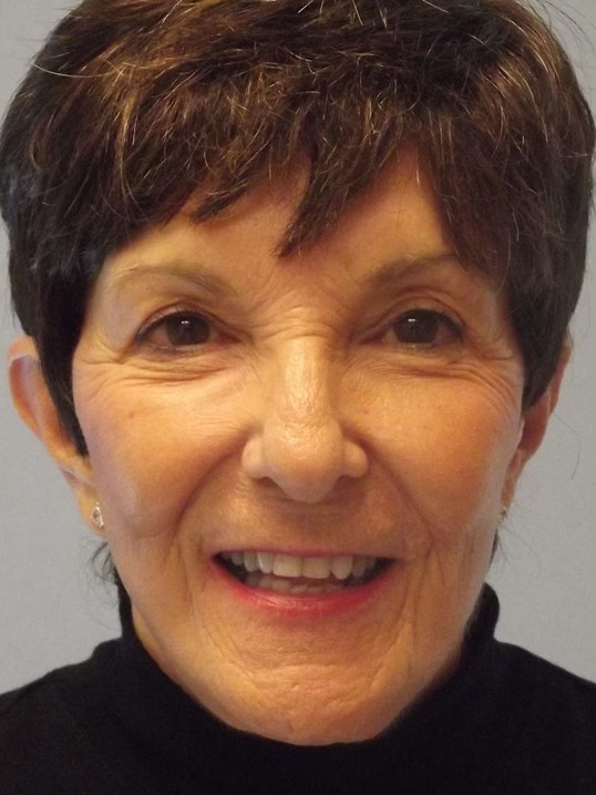 NY Facelift Expert Dr Suzman After