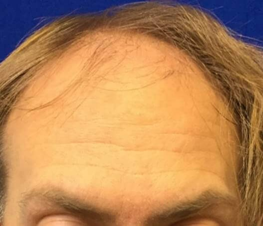 Male NeoGraft NY Hair FUE Before