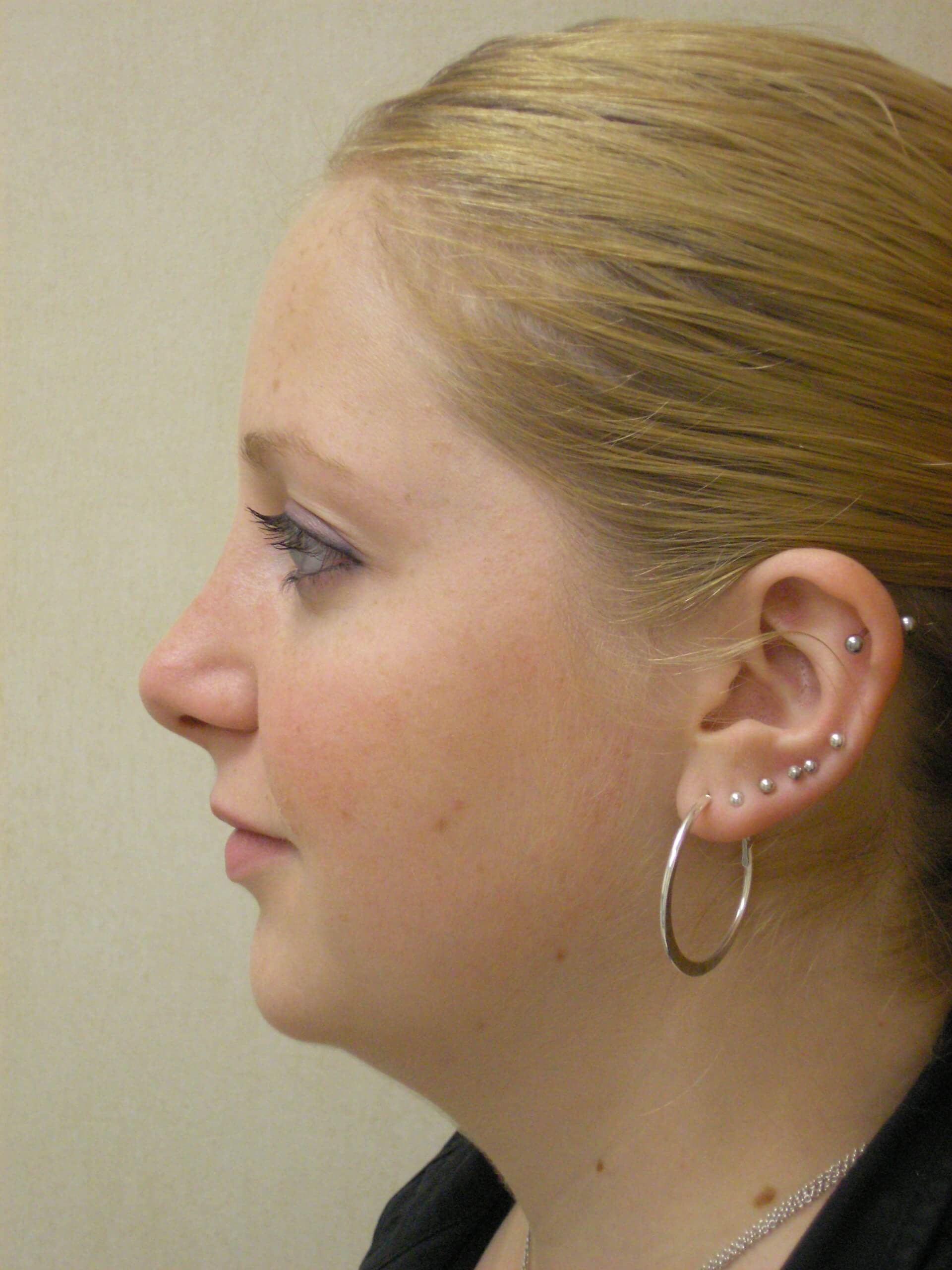 Closed rhinoplasty septoplasty After