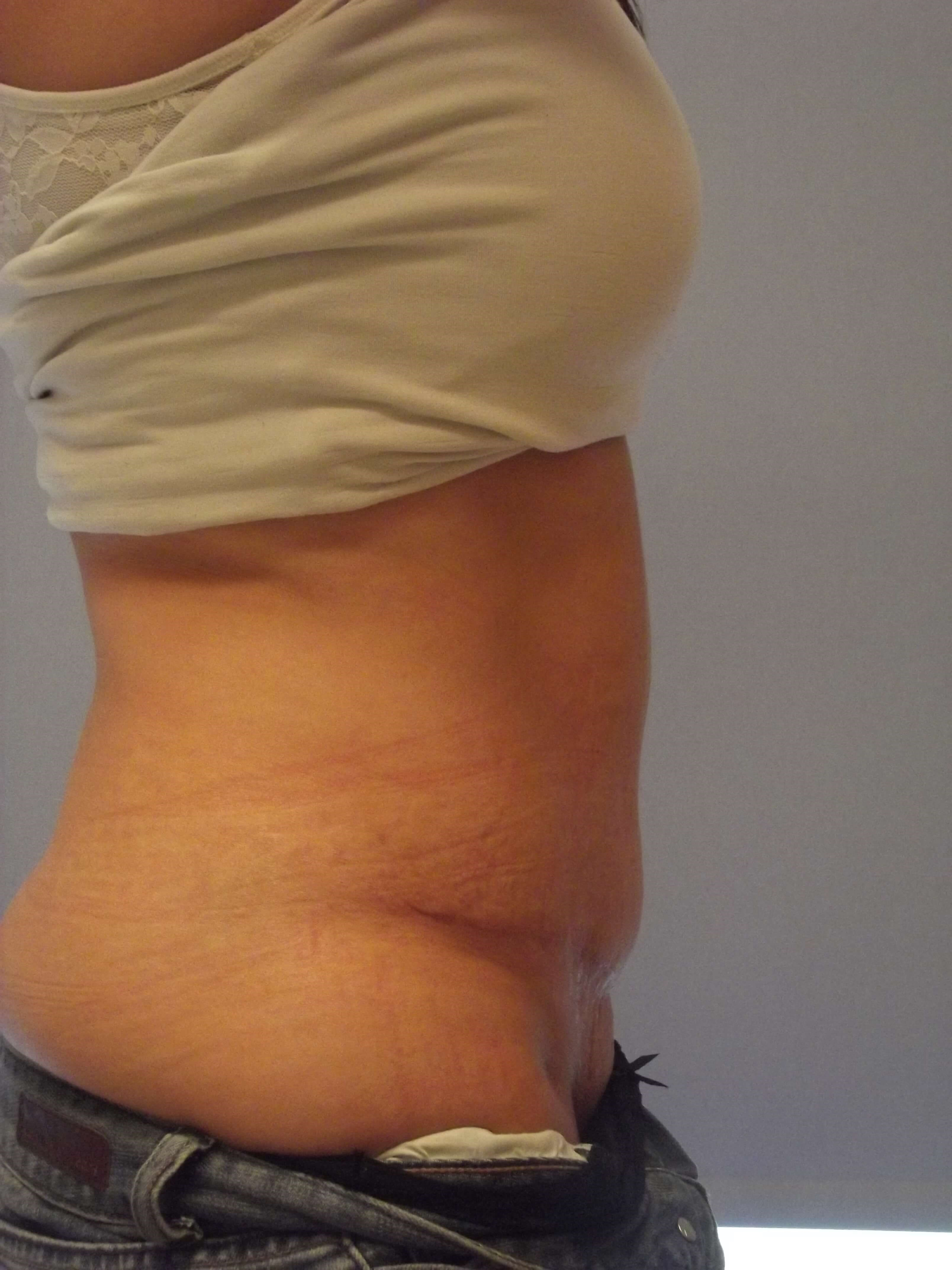 Side View Abdominoplasty After