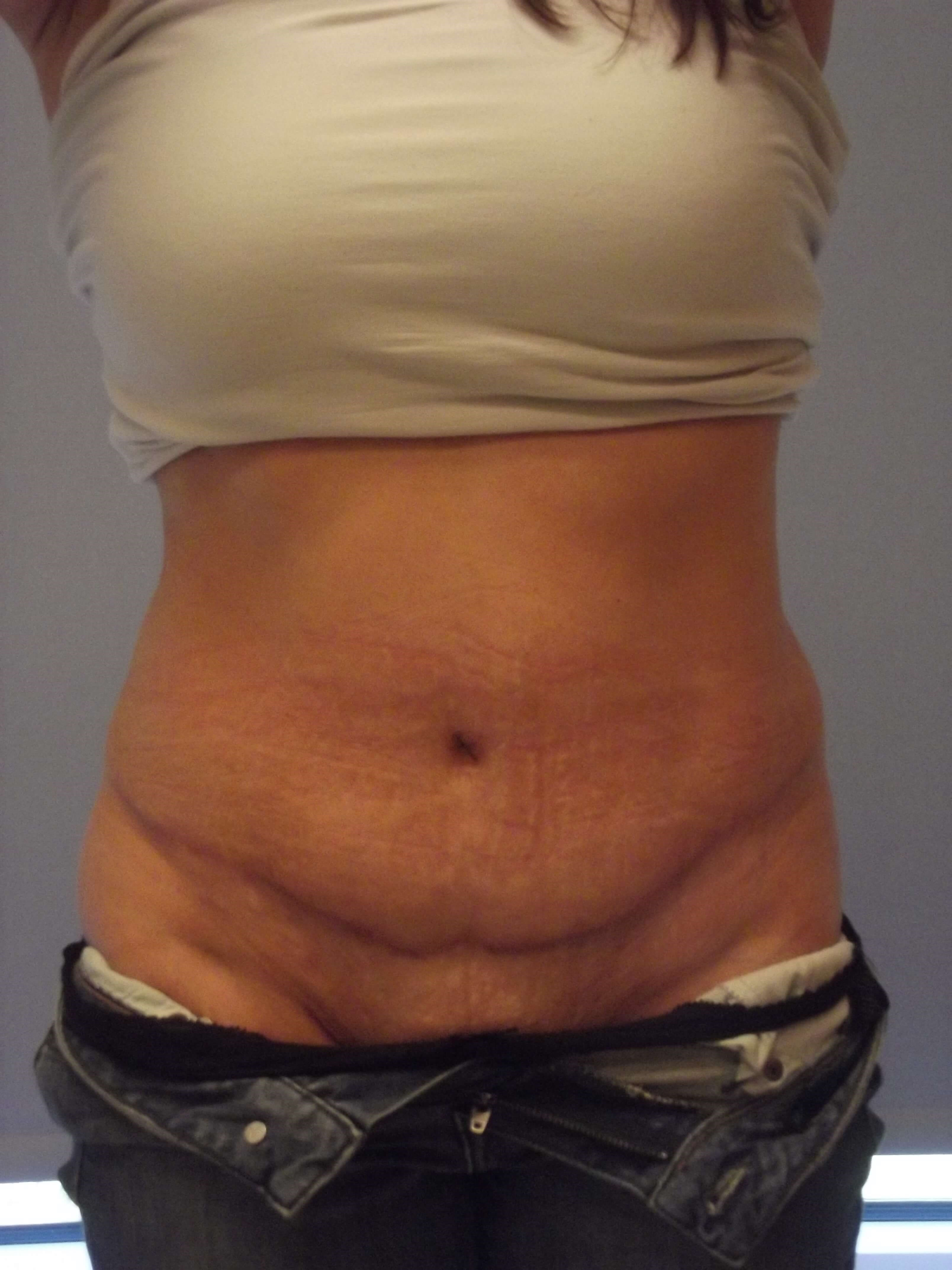 Dr. Suzman Abdominoplasty After