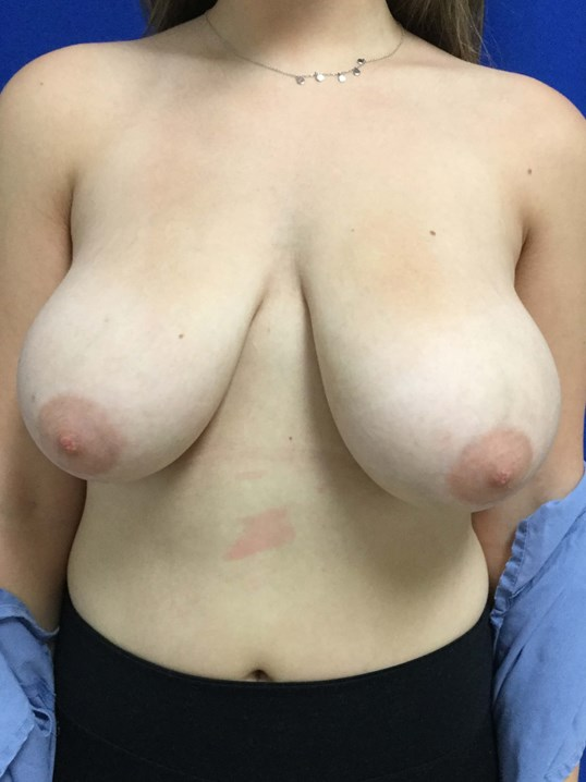 front view breast reduction Before