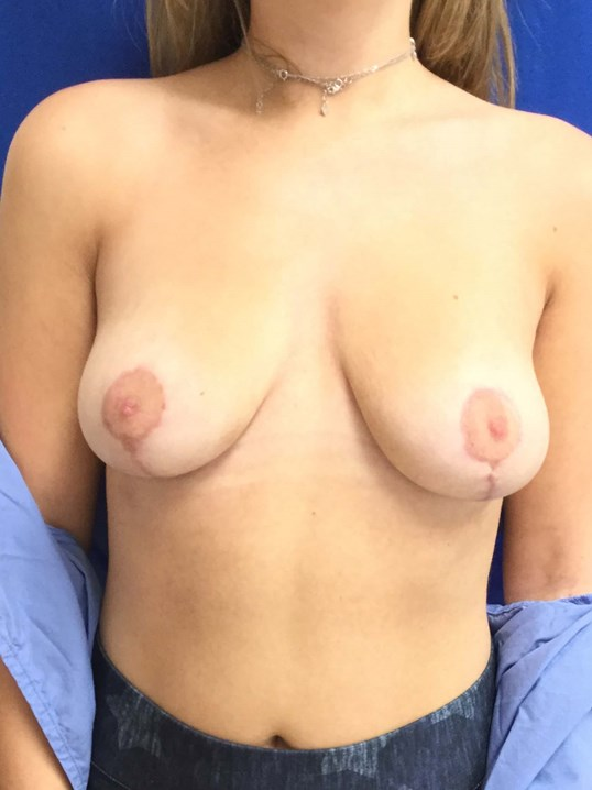 front view breast reduction 3 weeks After