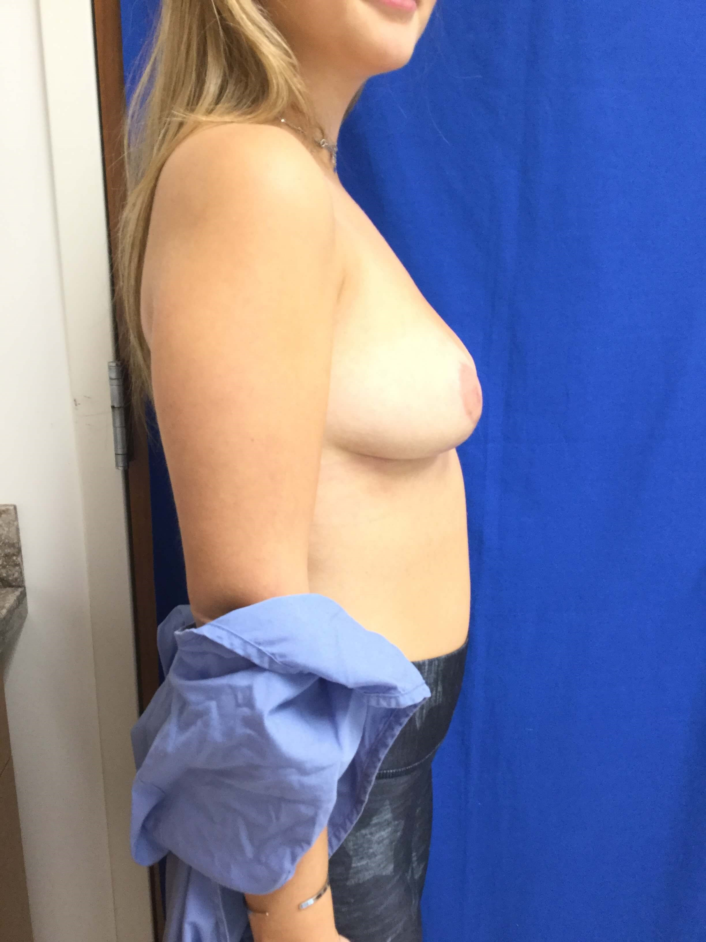 Vertical breast reduction After