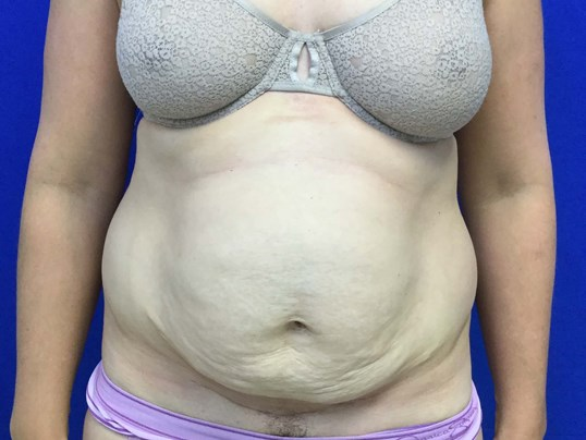 Tummy Tuck after Pregnancy Before