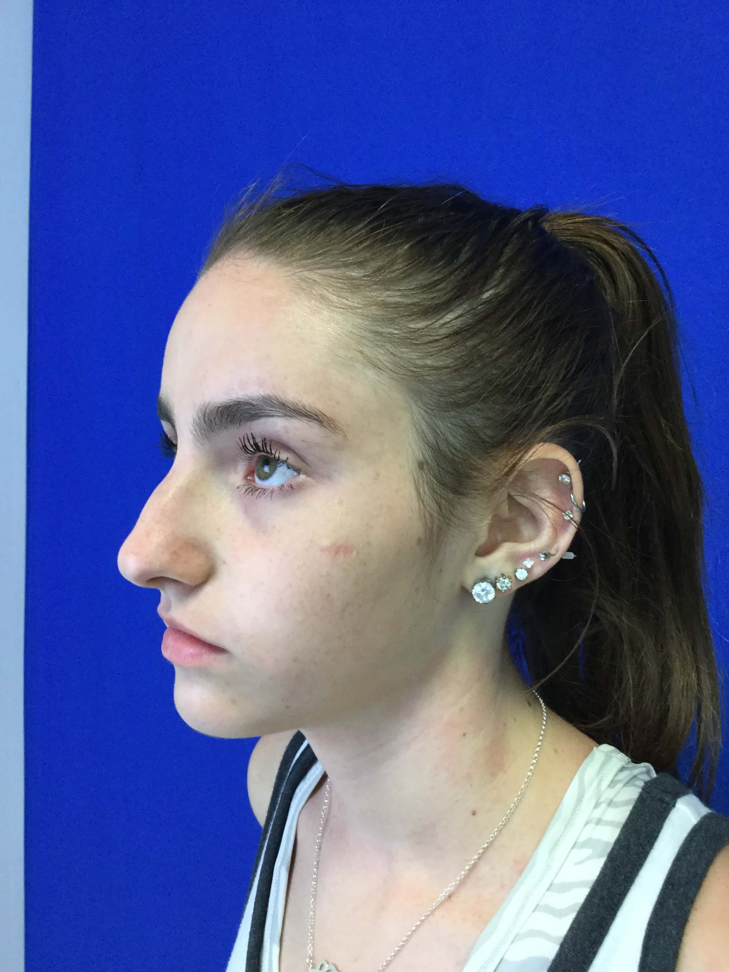 Dr. Suzman rhinoplasty surgery Before