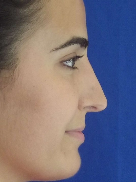Rhinoplasty for bump in nose After