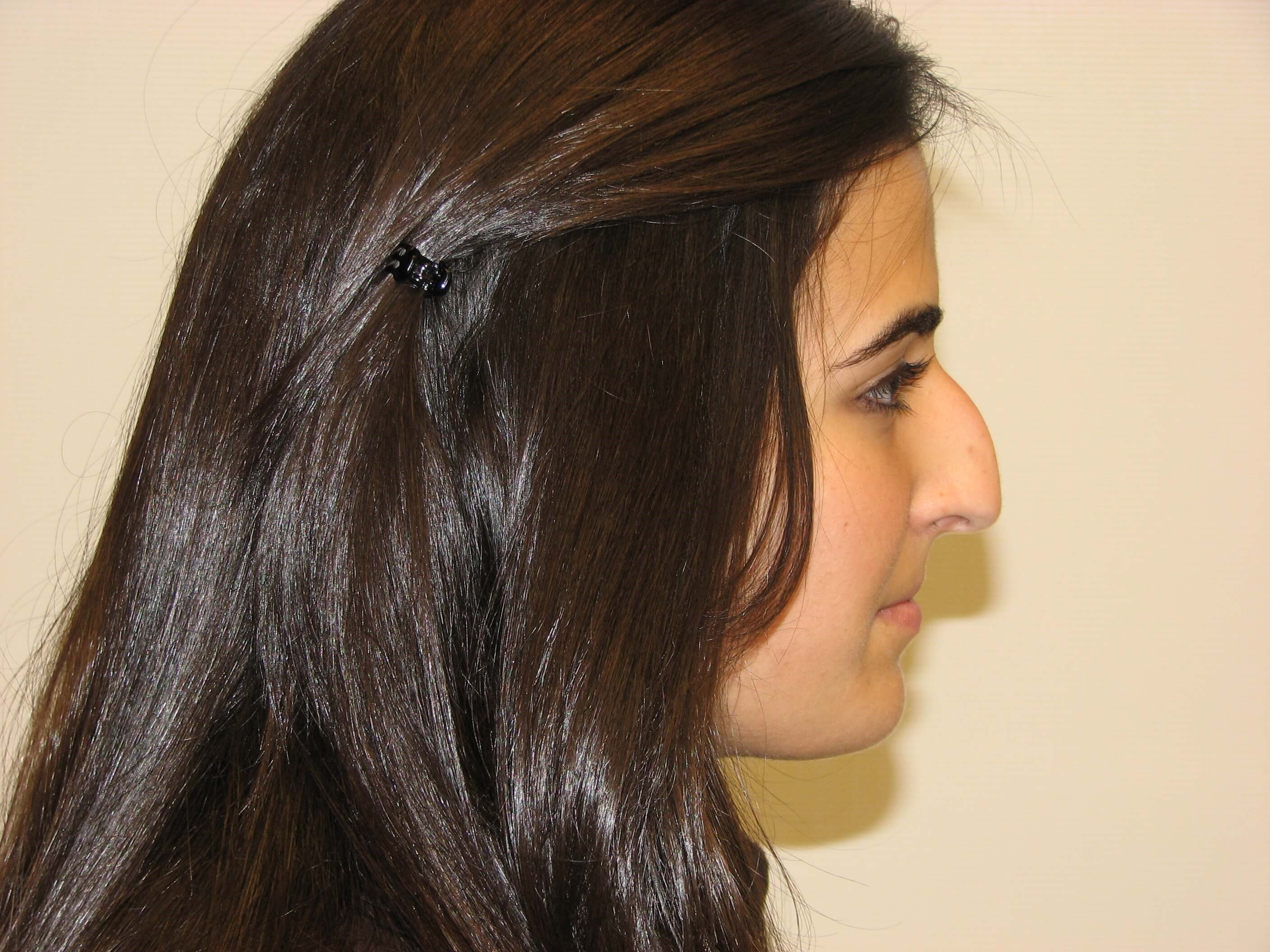 Rhinoplasty for bump in nose Before