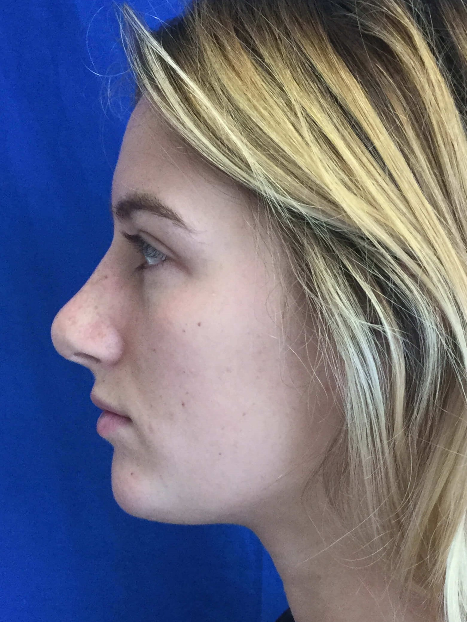 Side View Rhinoplasty Chin After