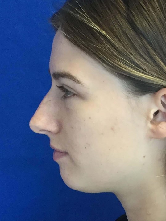 Side View Rhinoplasty Chin Before