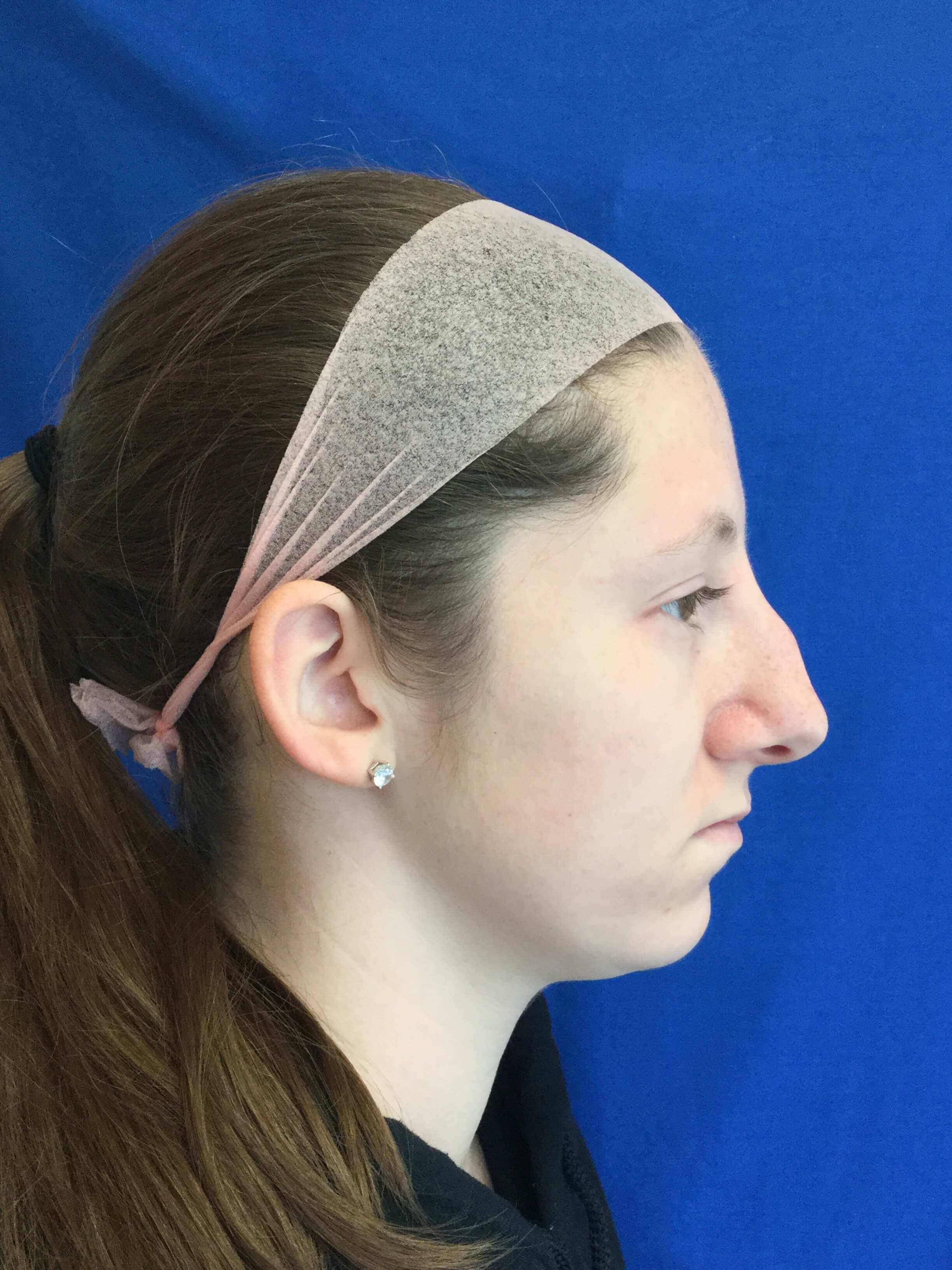 Rhinoplasty Dr. Suzman Before