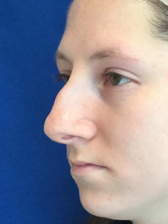 Nose fracture and bump surgery Before