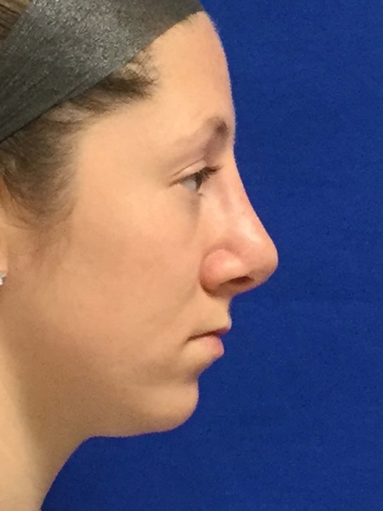 Rhinoplasty Dr. Suzman After