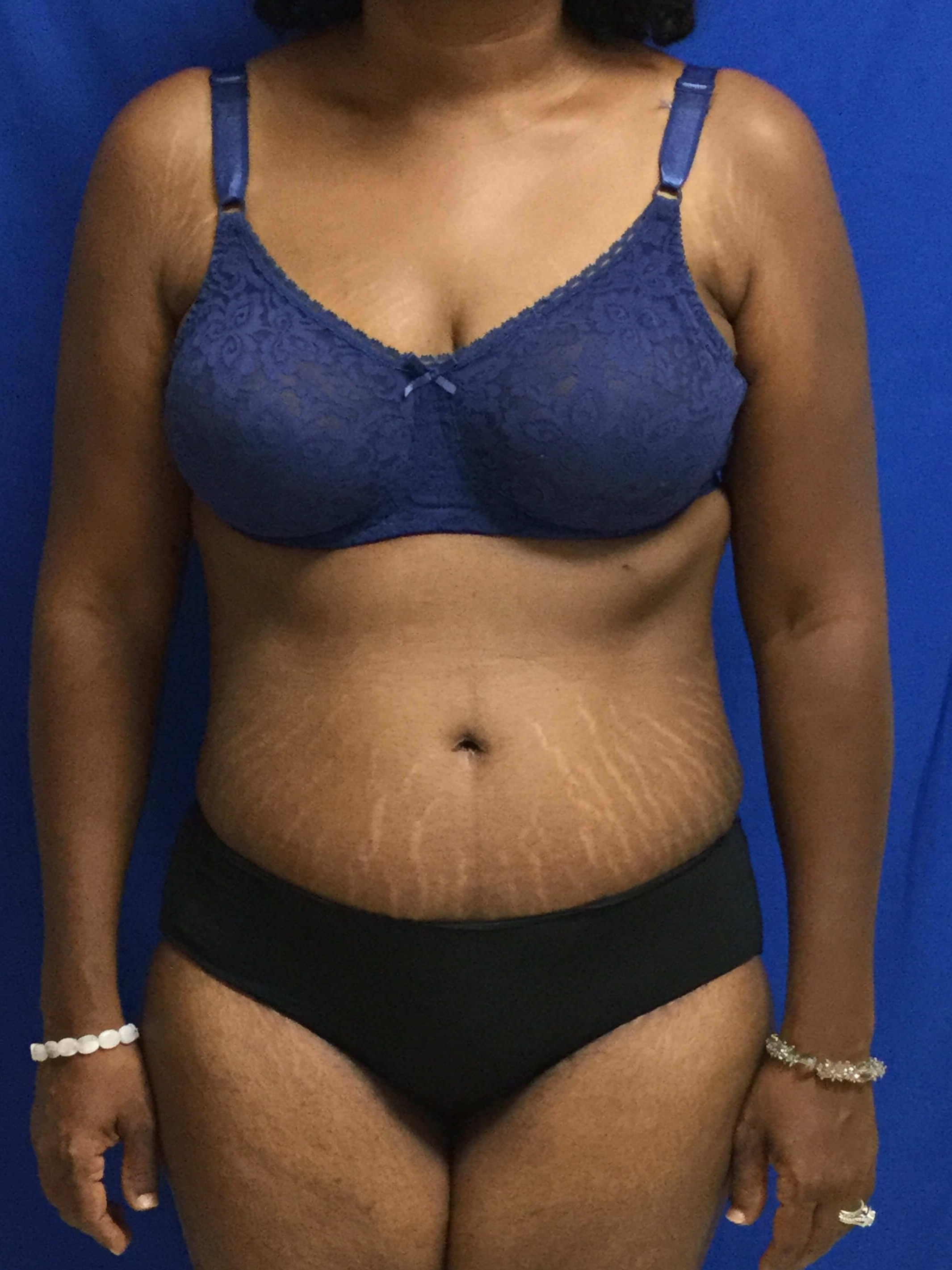 Dr. Suzman tummy tuck After