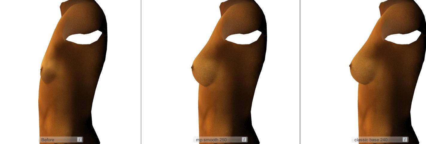 implant comparison
