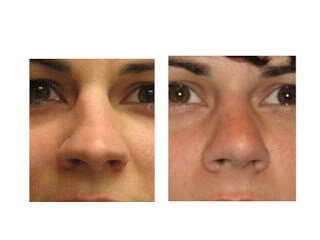 Fixing Broken Noses: How to Manage Nasal Fractures and When