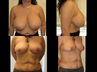 NYC breast reduction surgeon Before and after